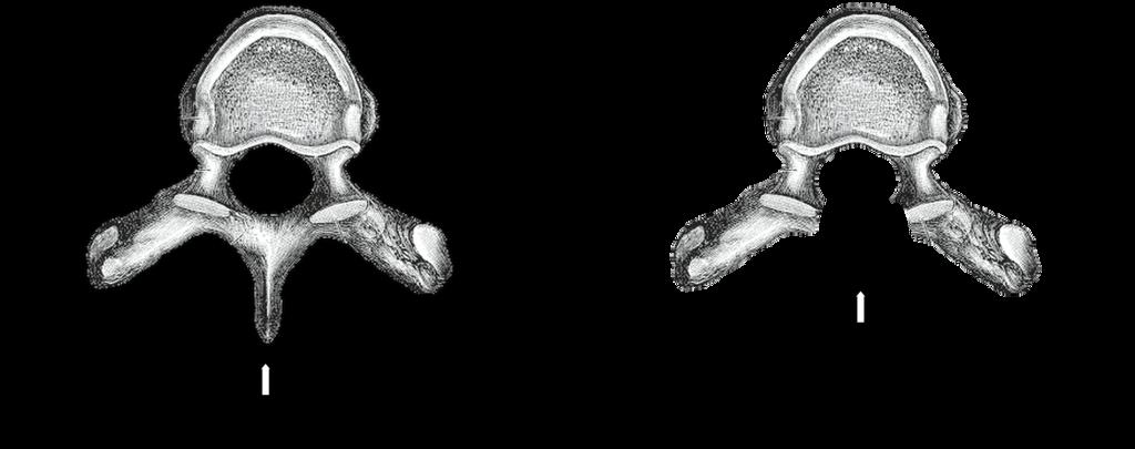 Brustwirbel von oben mit und ohne hinteren Dornfortsatz